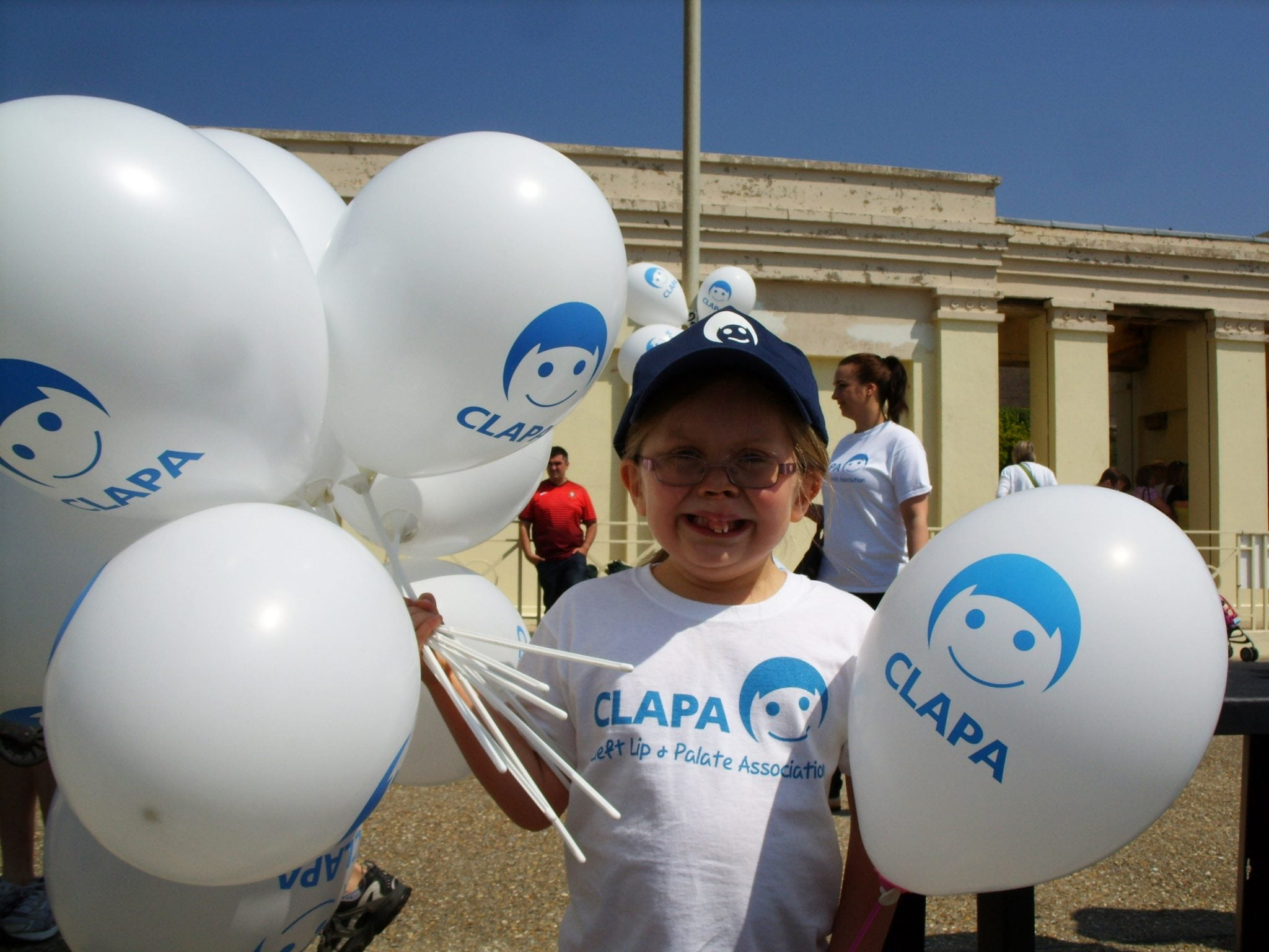 Interview: Anna Martindale Of The Cleft Lip & Palate Association (Cleft Lip & Palate Awareness Week)